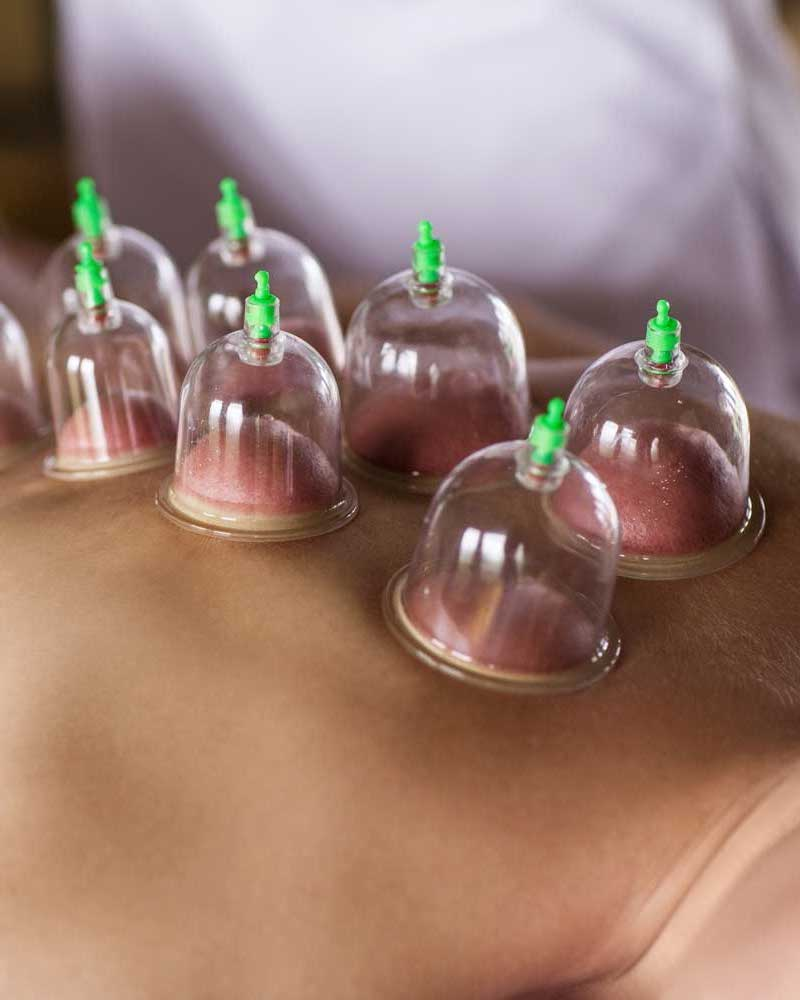 Cupping Therapy Scar Tissue: Physical Justice House Of Healing